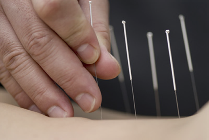 acupunctuur3